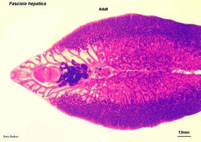 Fasciolopsis buski (по мнению Х.Кларк, именно этот паразит является причиной рака)
