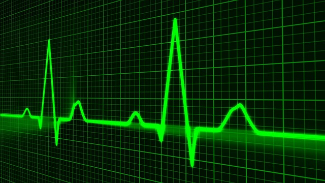 В подавляющем большинстве (97-98%) случаев, ИБС является следствием атеросклероза артерий сердца, то есть сужения их просвета за счёт, так называемых, атеросклеротических бляшек